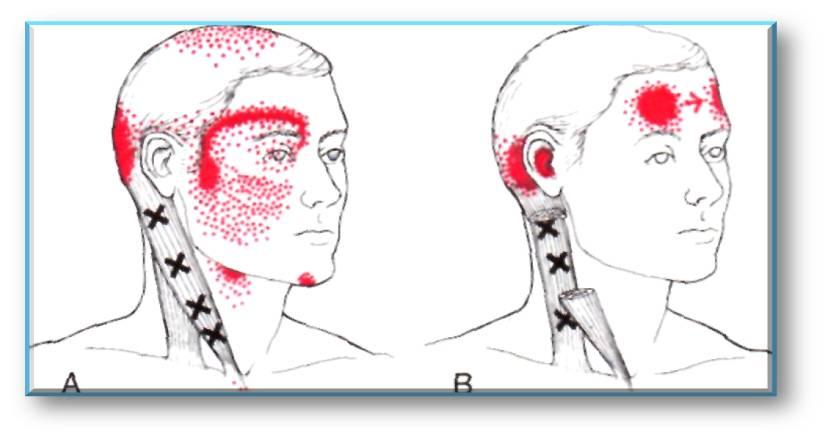 El complejo de la gimnasia médica a la osteocondrosis lumbar