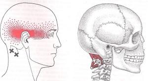 punto gatillo suboccipitales