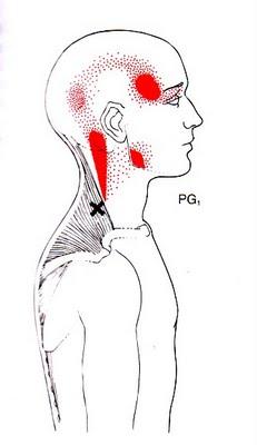 Duele la espalda en el cuello y la espátula